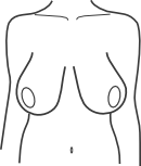 Pendulous / low hanging breasts